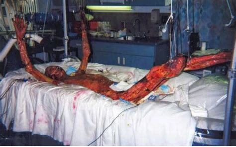What Radiation Can Do To Body